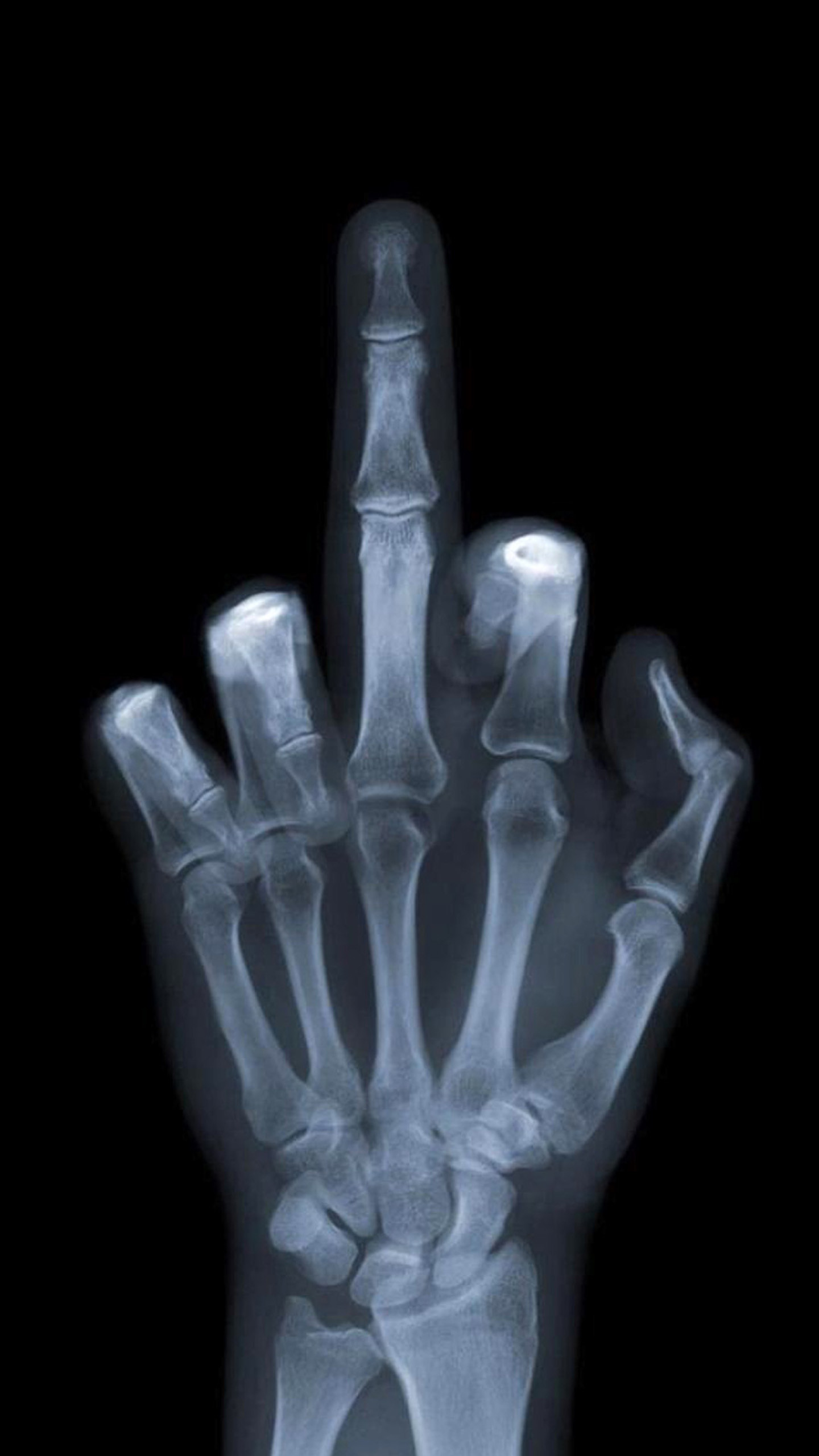 1440x2560 Middle Finger X-Ray Wallpaper
